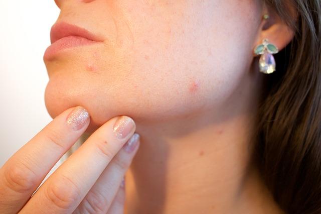 léčby akné