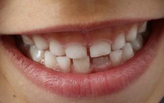 bylinné zubní pasty pro děti